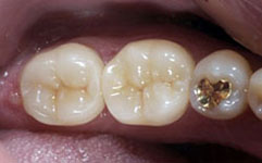 After:  Molar restored
