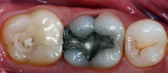 Before:  Molar with silver filling
